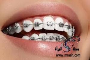 تقويم الأسنان: مميزاته وعيوبه