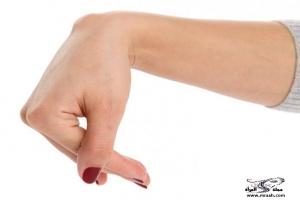 الاصابة بالكيس الزلالي في اليد